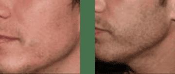 facial transplant 1