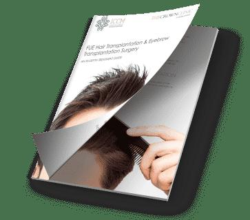 hair transplant guide