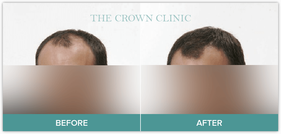 hair loss treament for men
