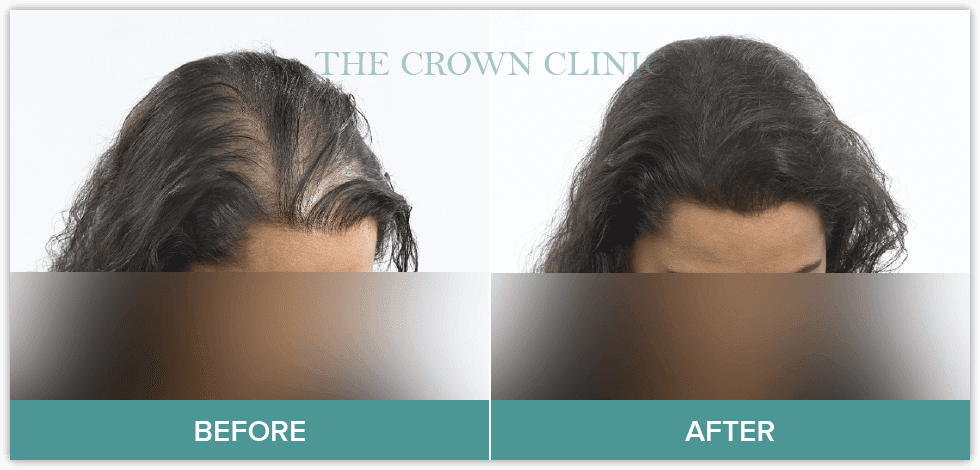 hair loss treament for women