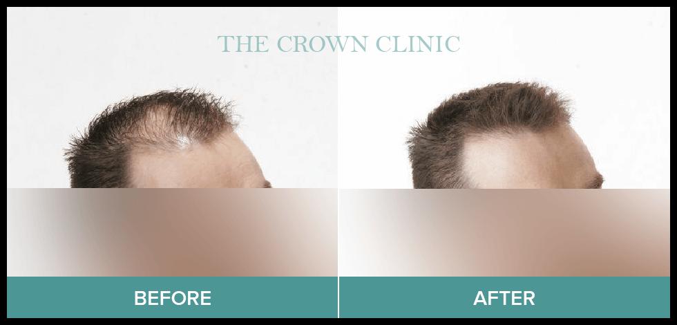 hair loss treatment sydney