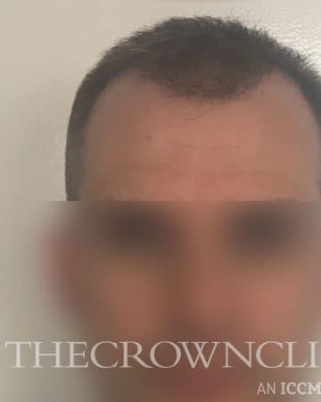 FUE Hair Transplant Treatment After