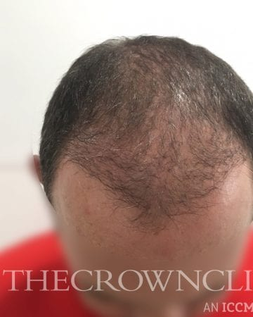 smp scalp micropigmentation after