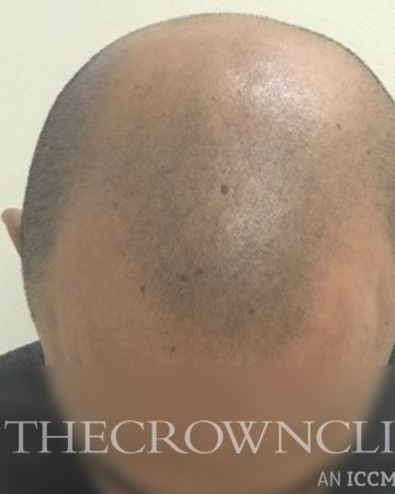 SMP Scalp Micro Pigmentation Before