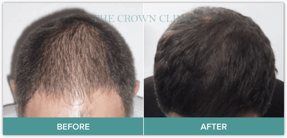 growth factor therapy hair treatment sydney
