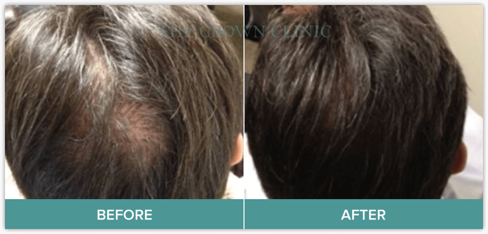 growth factor therapy treatment for hair loss