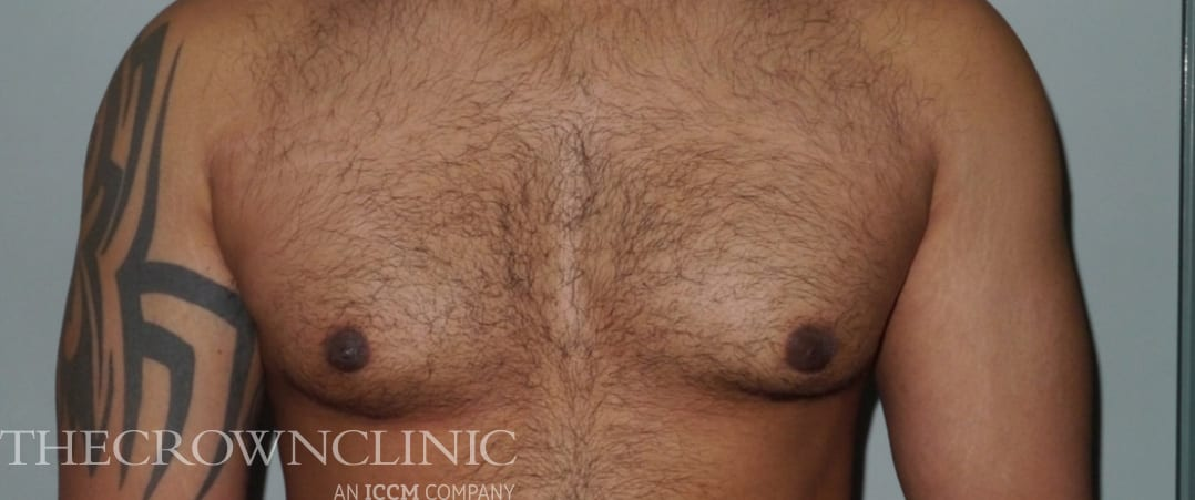 gynaecomastia (male breast reduction) surgery after