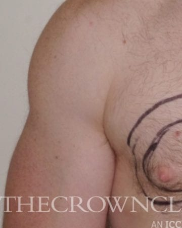 gynaecomastia (male breast reduction) surgery before