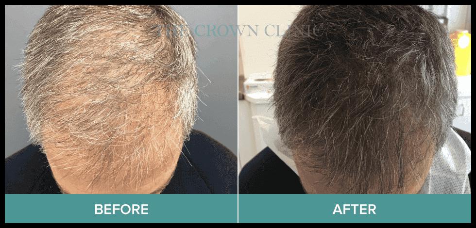 scalp pigmentation treatment sydney